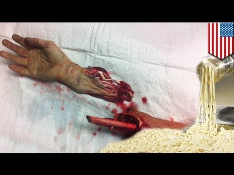 Gore accident video! Teen's arm severed by pasta machine in Italian restaurant kitchen