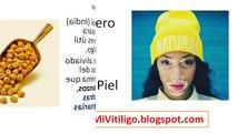 El Vitiligo Tiene Cura con Tratamiento Natural de Remedios Caseros para las Manchas de vitiligo