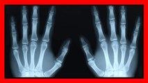 Si scrocchia le dita per 60 anni, ecco cosa scopre