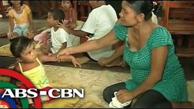 Mga buntis sa evacuation centers sa Albay, hirap