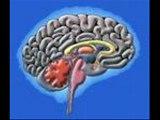 Beyin hastalıkları danışma hattı 0535 3573503,şant manukyan,hidrosefali,şant ameliyatı ne kadar sürer,şant ameliyatı