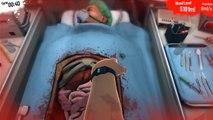 Surgeon Simulator 2013 Kidney Transplant Success (FULL GAME)