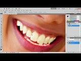 Dicas - Photoshop: como deixar os dentes brancos - Baixaki