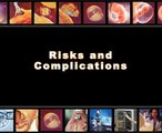 Risks and complications of IVF