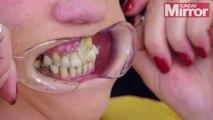 Une femme se colle les dents avec de la super glue