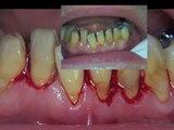 Facettes dentaires sur les dents du bas: mode d'emploi.