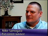 Common Laser Surgery for Uncommon Cancer