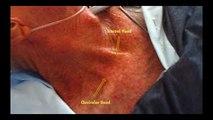 Internal jugular central line insertion