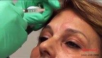LaserTouch Aesthetics - Botox, Dermal Fillers, Juvederm, Radiesse by Dr Vafa.wmv NYC 212-219-1990