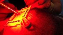 Opération de prélèvement d'implants capillaires The Clinic Paris & robot ARTAS
