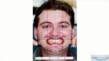 Digital Smile Lab: Dental smile design service