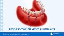 Prothèse Complète Fixe Sur Implants-Brossard-La Prairie-St-Hubert-Longueuil-Candiac...(450) 923-7999