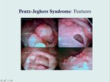 Peutz-Jeghers Syndrome - CRASH! USMLE Step 2 and 3