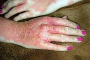 Eczema Home Treatment for Hands - Dyshidrotic Eczema Treatment for Hands
