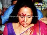 BJP MP Hema Malini injured in accident near Dausa in Rajasthan