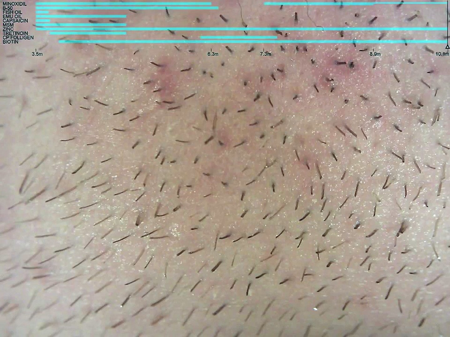 Beard hair growth on minoxidil, chin (10 1 month) time lapse