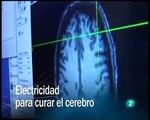 Redes Neurociencia (Electricidad para curar el cerebro) eduardo punset