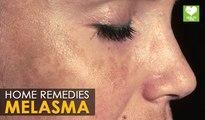 Melasma Treatment (Cure) - Home Remedies | Health Tips