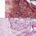 Histopathology Bone --Rickets