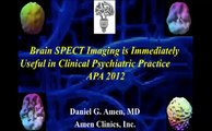 Dr. Daniel Amen | Brain SPECT Imaging - Psychiatry's Tool to Save Lives