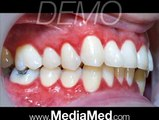 Teeth Cleaning, Brushing and Flossing-Dental