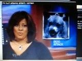 Pit bull mix attacks elderly woman