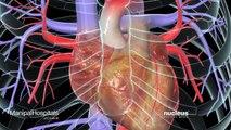 CABG | Coronary Artery Bypass Surgery | Heart Disease Treatment | Heart Hospital | Manipal Hospitals