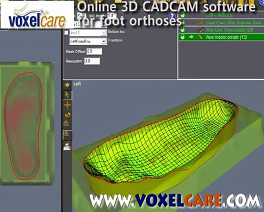 Voxelcare Com Online 3d Foambox Cadcam Insole Orthotic Orthosis Design Software Video Dailymotion