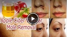 Apple Cider Vinegar Mole Removal