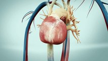 TAVI transfemoral - Transcatheter Aortic Heart Valve - Animation