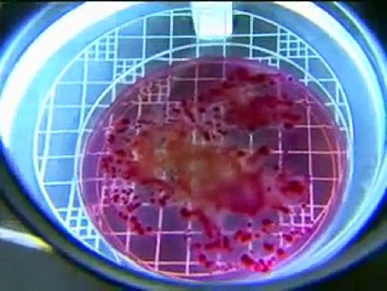 Dr. Bacteria - Limão tem mais bactérias do que dinheiro