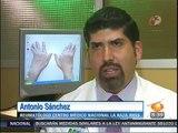 La Artritis reumatoide: Sintomas y tratamiento