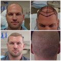 Hair Transplant in Los Angeles - FUE Hair Restoration and FUE Hair Transplant Clinic