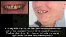 Extractions dentaires et prothèse fixée immédiate sur implants dentaires