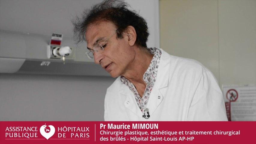 Professeur Maurice Mimoun, chirurgien plasticien, esthétique et traitement chirurgical des brulés