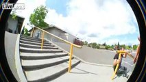 Skater smashes face on rail and breaks his jaw
