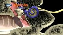 Otitis Media (Glue Ear) - II
