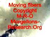 Morgellons  Нити моргеллонов под микроскопом