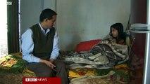 Bangladeshi woman's husband chopped off her fingers
