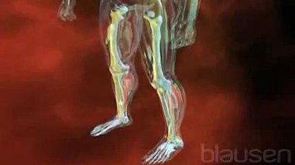 La rupture du tendon d'Achille