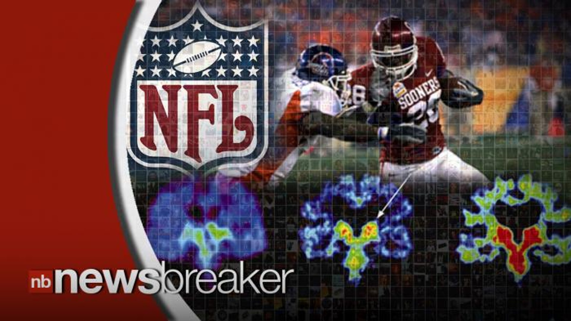Study Found Degenerative Brain Disease in 87 Out of 91 Former NFL Players