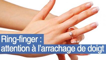 Ring-finger ou les dangers des bagues