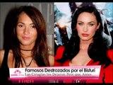Bellas que destrozaron su rostro con cirugías - Gabriela Natale