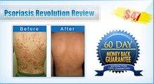 Psoriasis Revolution Review + 8 FREE Bonuses
