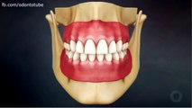 After tooth extraction   What Happens After a Tooth Extraction Dental Arts Studio 2015