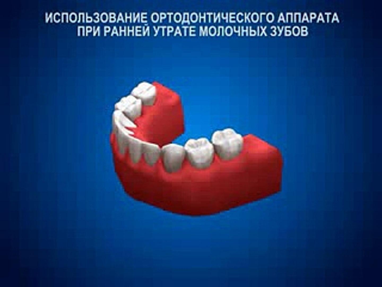 Утрата молочных зубов