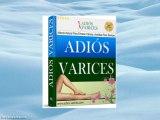 Adios Varices. Revision del popular metodo para las varices
