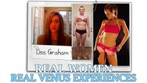 Real Women Share Their Venus Experiences from Kyle Leon on Vimeo