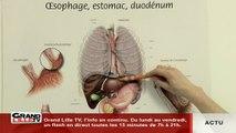 Santé: le reflux gastrique, c'est quoi?