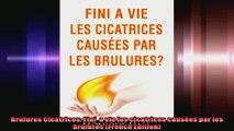 Brulures Cicatrices Fini  a vie les cicatrices causées par les brulures French Edition